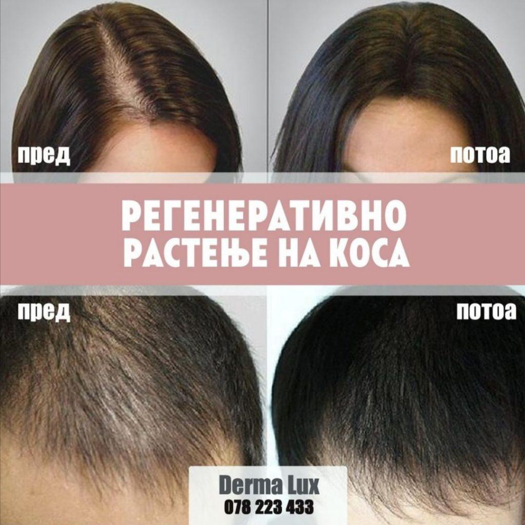 regeneriranje na kosa